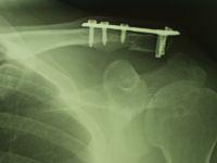 左鎖骨遠位端骨折